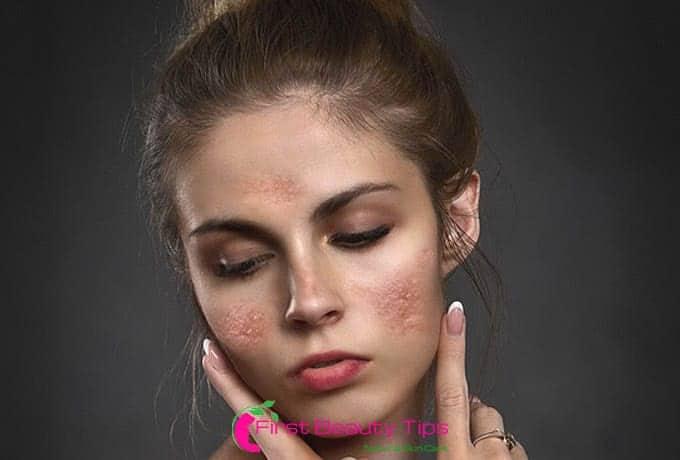 Skin Pigmentation Treatment At Home