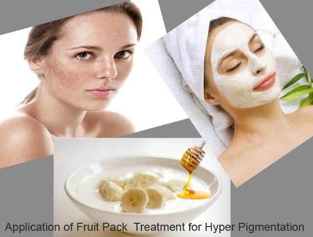 Skin Pigmentation Causes Prevention and Treatments