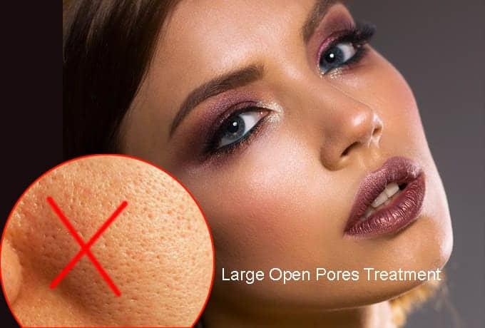 Large Open Pores Treatment