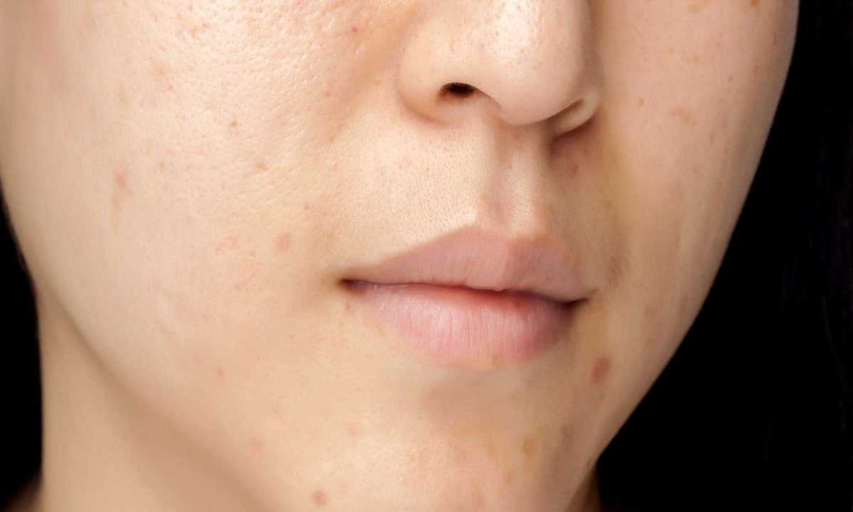 How to Remove Black Spots on Face Naturally at Home