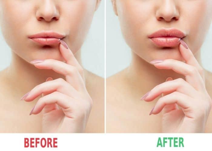Restylane Lip injection treatments